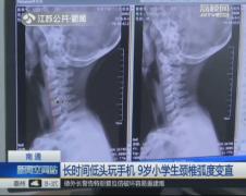 9岁小学生颈椎弧度变直线!家长发现已晚!