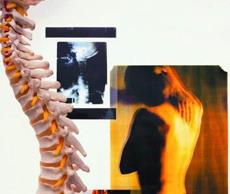 腰椎病图片