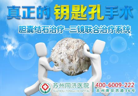 胆囊结石治疗