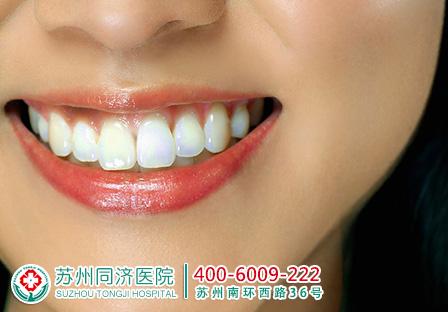 出现蛀牙需不要拔牙 可以治疗吗