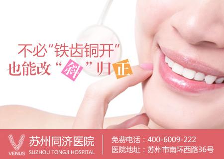 暑期正畸 立正小歪牙――同济青少年特惠牙齿正畸