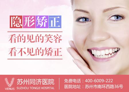牙齿正畸 绽放你牙齿的美丽